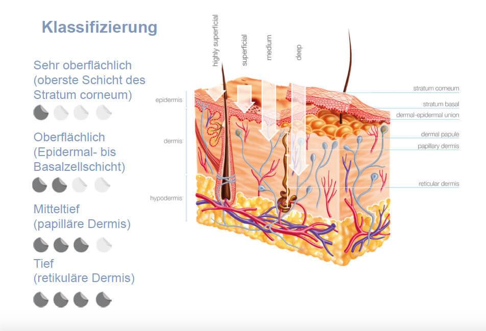 Fruchtsäure- Behandlung
